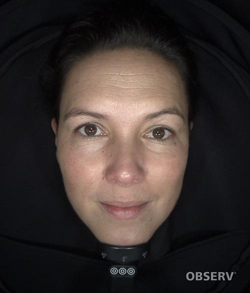 Beautyvit huidverbetering observ parallel polarised