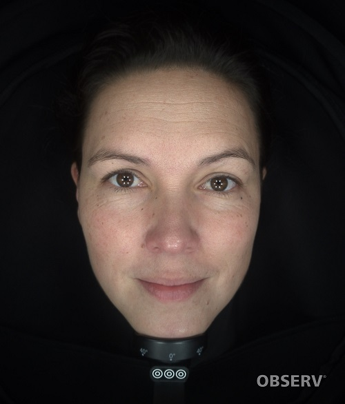 beautyvit huidverbetering observ daglicht