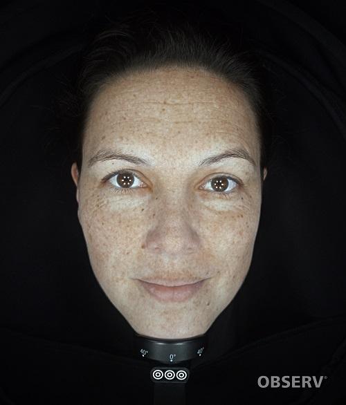 Beautyvit huidverbetering observ 520x pigmentatie