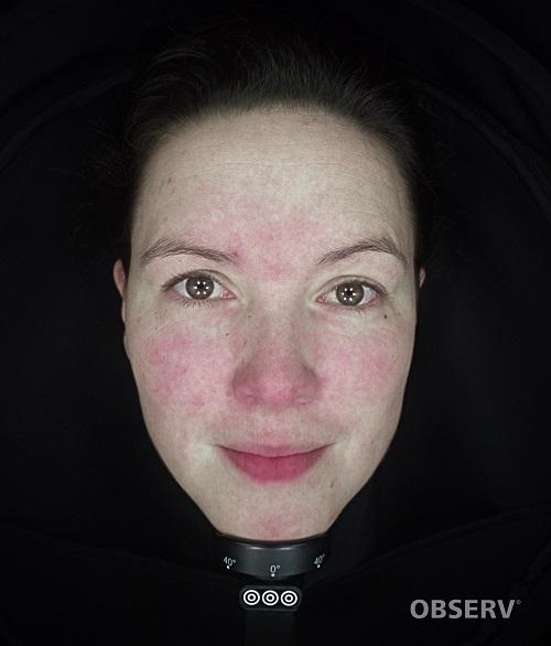 beautyvit huidverbetering observ520x roodheid