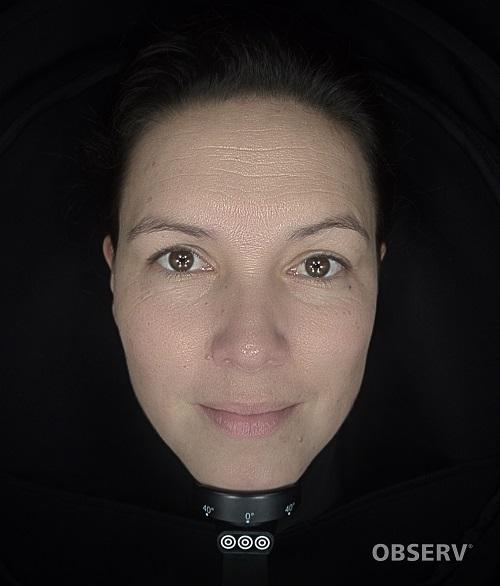Beautyvit huidverbetering observ520x textuur